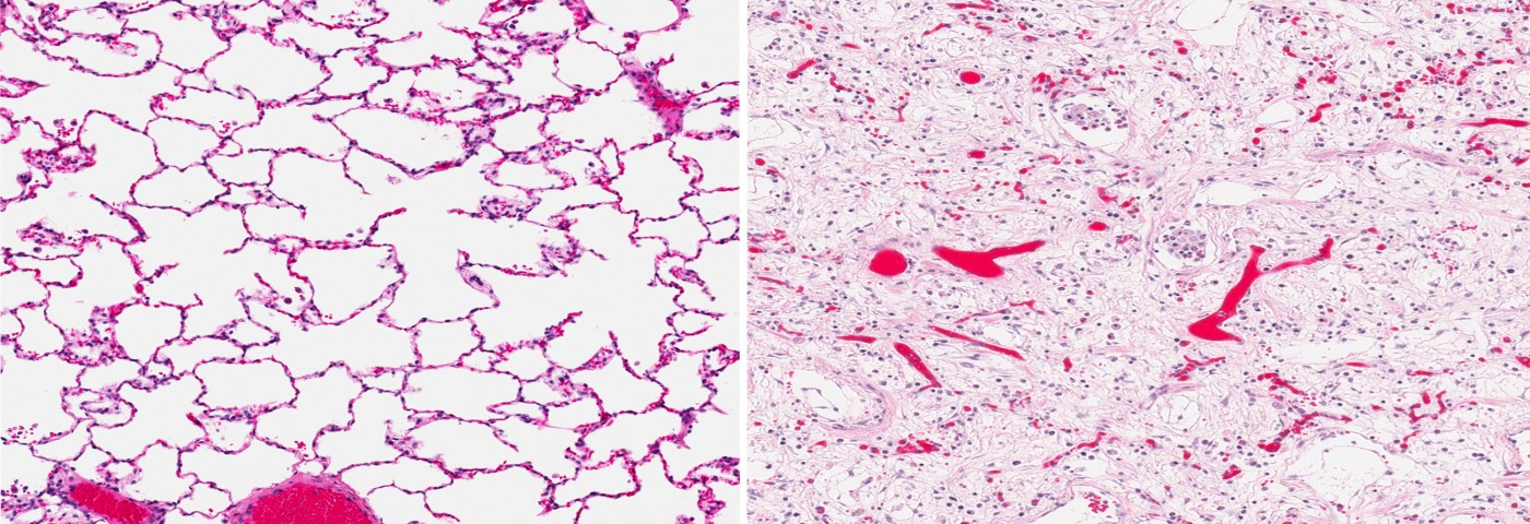 Idiopathic Pulmonary Fibrosis Disease Worsening Can Be Predicted by Measuring Lung Inflammation, According to Study