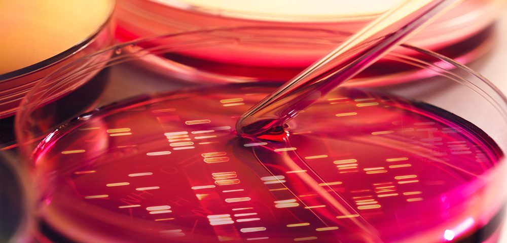 Distinct Differences Seen in Mucus-encoding Genes of IPF Patients Across Europe