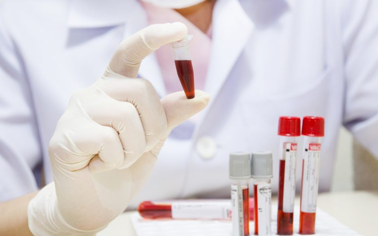 IPF blood biomarker study
