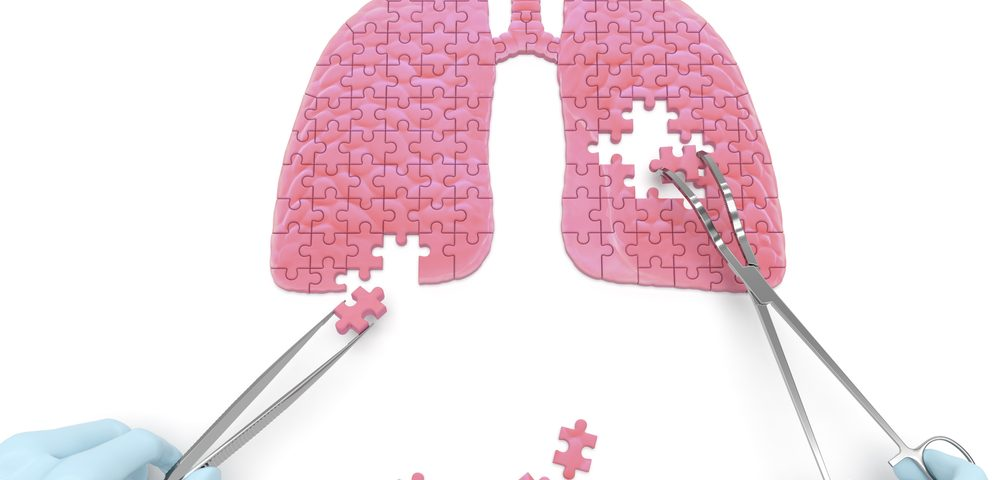 Long-Term Treatment with Esbriet Seen to Slow Lung Function Loss in Severe IPF Patients