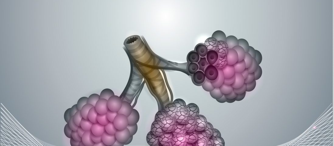 Researchers Find High Levels of Anti-Inflammatory CC16 Protein in IPF Patients