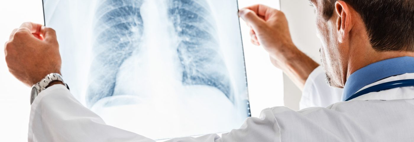 Bleomycin-triggered Lung Disease May Be Treated with Esbriet, Case Report Suggests