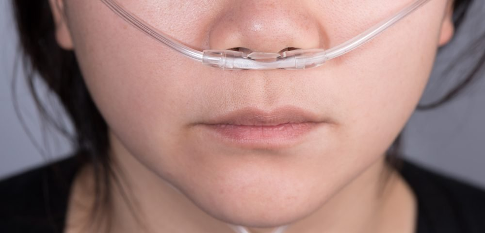 The Travails of Dealing with Supplemental Oxygen