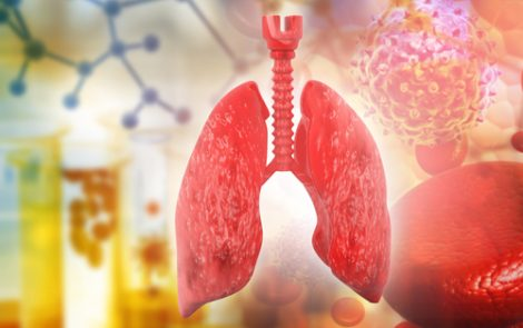 French Researchers Find 41 Mutations in Lung Cancers Associated with Pulmonary Fibrosis