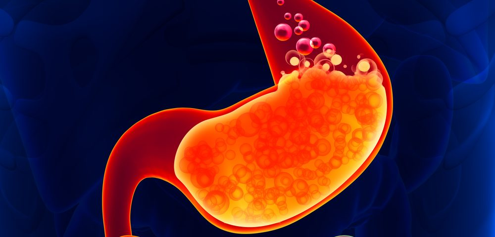 Surgery to Prevent Reflux in IPF Patients May Be Superior to Anti-Acid Medicines, Study Says